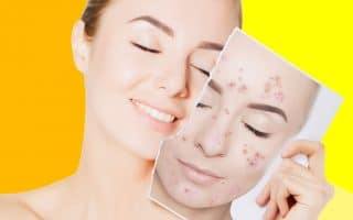 prevent pimples on face