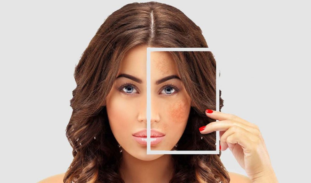 Surprising Facts About Dark Spots