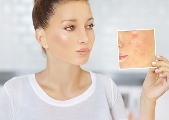 Treat Acne and Dry Skin